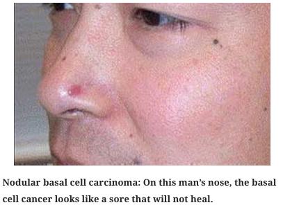 skin cancer 1