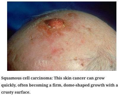 skin cancer 2