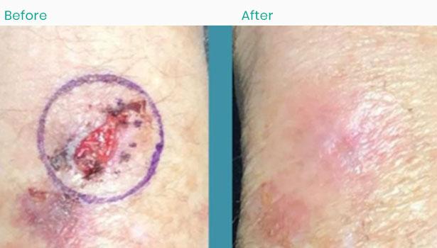arm-skin-cancer