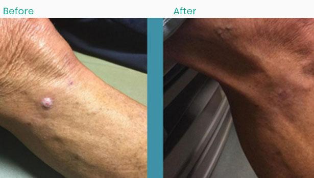 knee-skin-cancer