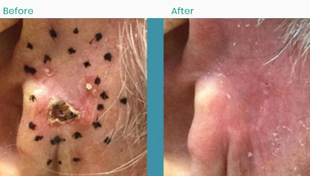 skin-cancer-check